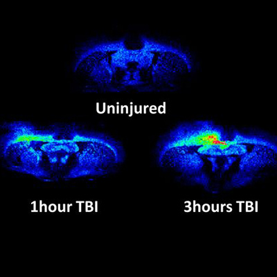 Neuroscientist identifies biomarker for traumatic brain injury