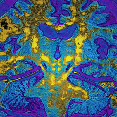 New blood test reads messages from the brain